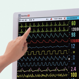 迈瑞医疗 监护仪功能升级