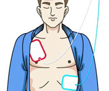 how an AED works