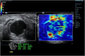 Sound Touch Elastography