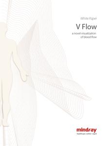 V Flow